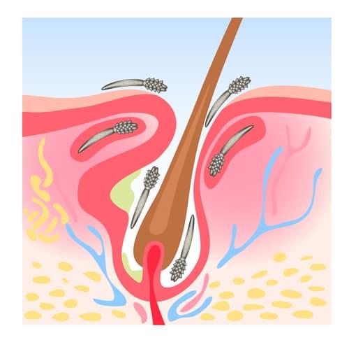 Demodicosis (Demodex), also called demodectic mange or red mange. Vector illustration.