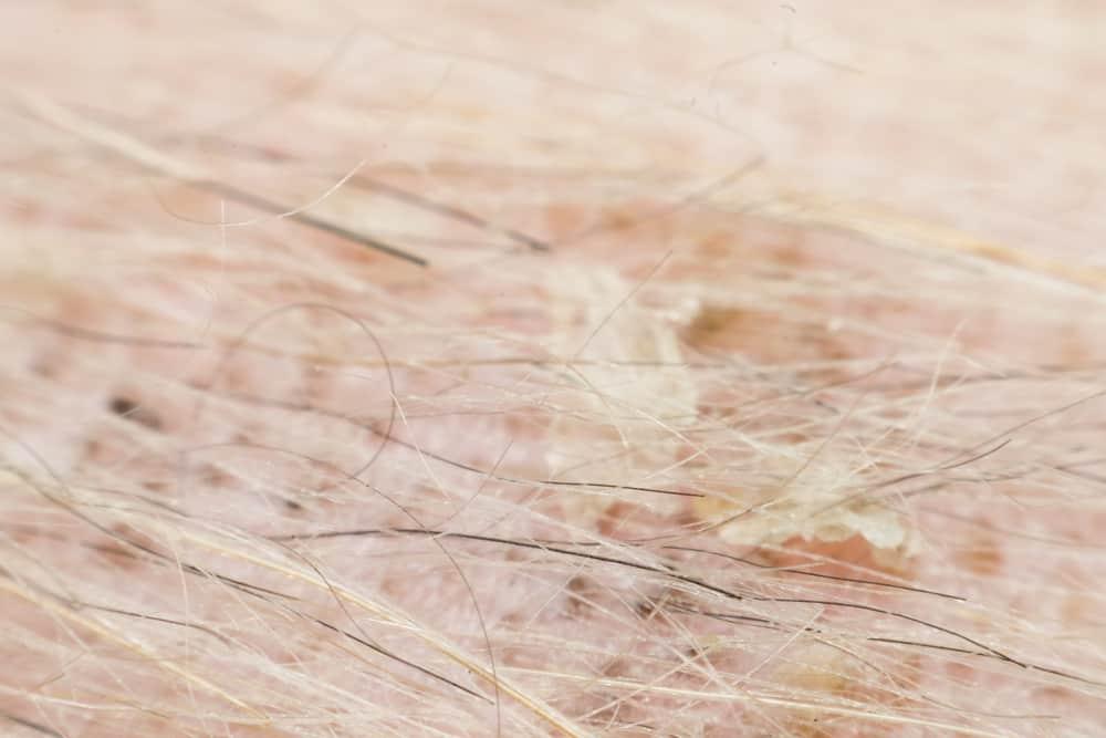 Atopowe zapalenie skóry u psów - leczenie
