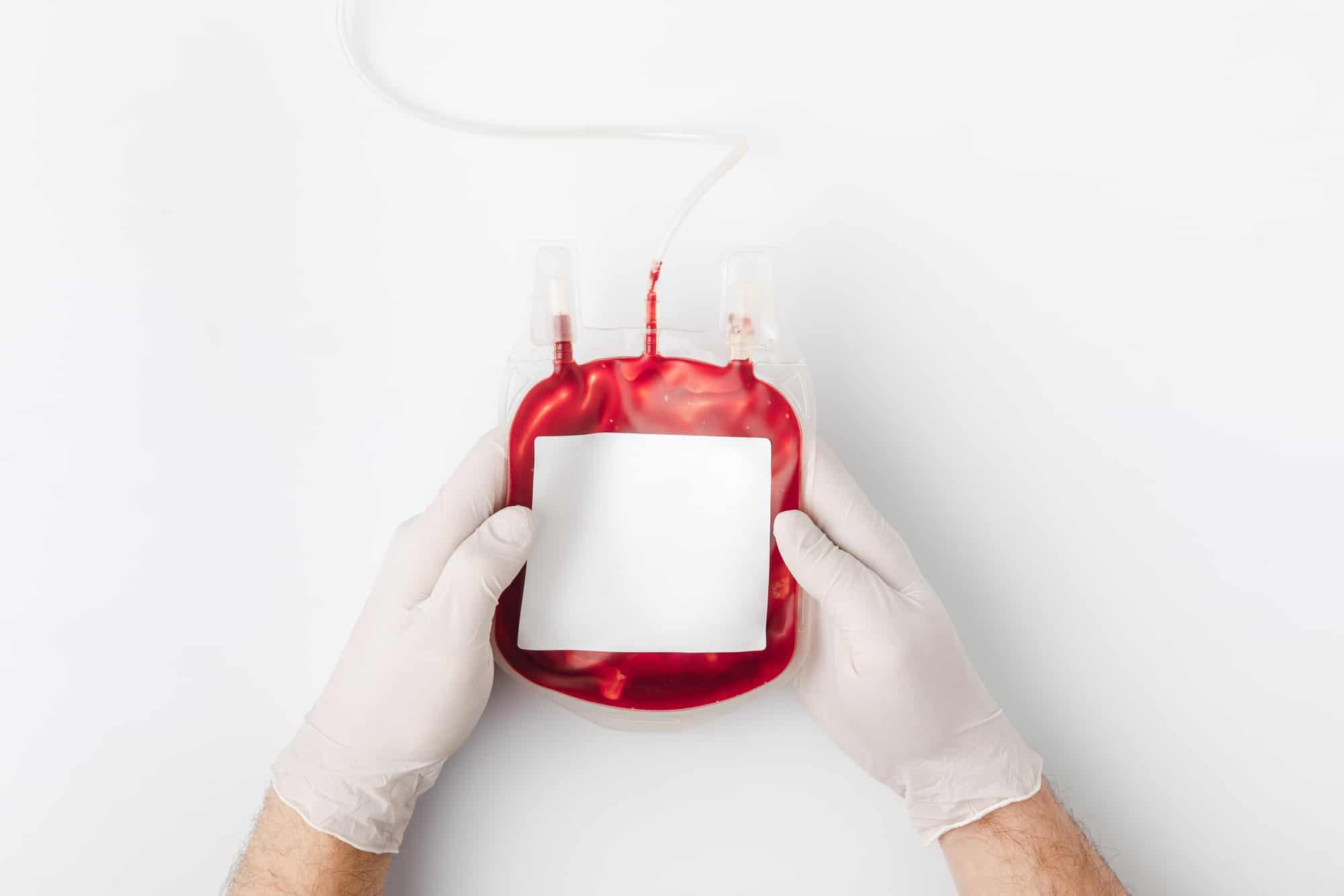 Dawca krwi-kot może oddawać krew co dwa miesiące.