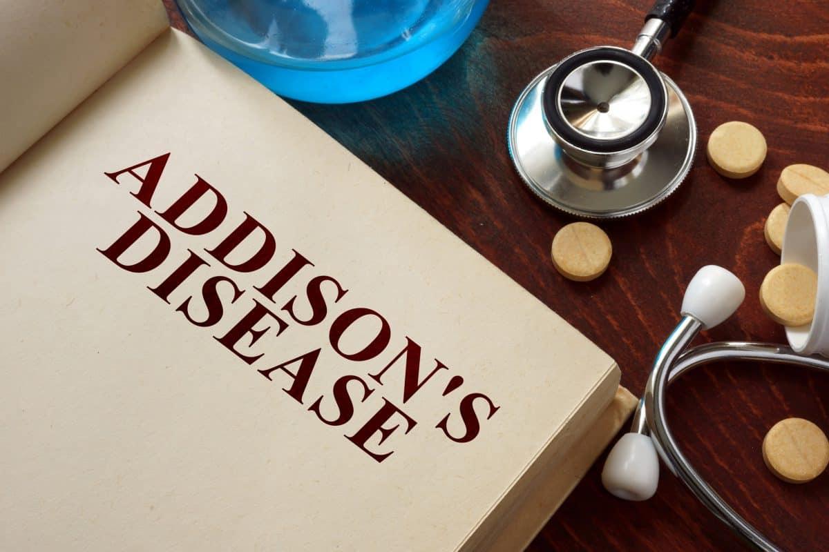 Choroba Addisona - objawy, diagnozowanie